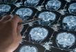 العلماء يتقدمون خطوة هامة نحو علاج مرض فقدان الذاكرة المدمر